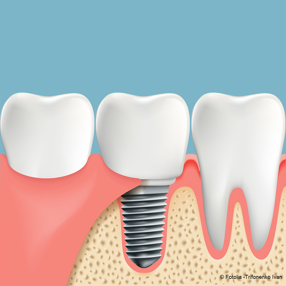 implant-dentaire_fotolia_111301538_trifonenko-ivan